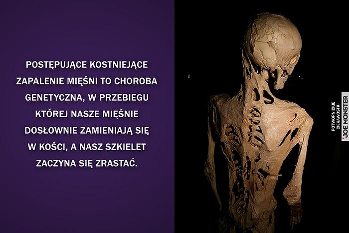 Postępujące kostniejące zapalenie mięśni to choroba genetyczna, w przebiegu której nasze mięśnie dosłownie zamieniają się w kości, a nasz szkielet zaczyna się zrastać.