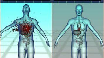 Wadliwa seria pocisków, które nieodpowiednio rozrywają ciało