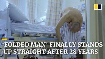 Zgięty od 28 lat mężczyzna w końcu się prostuje
