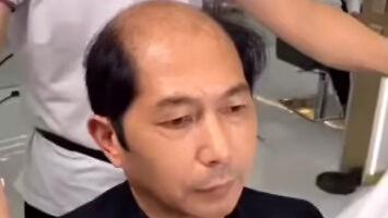 Co robić w przypadku pojawiającej się łysiny?