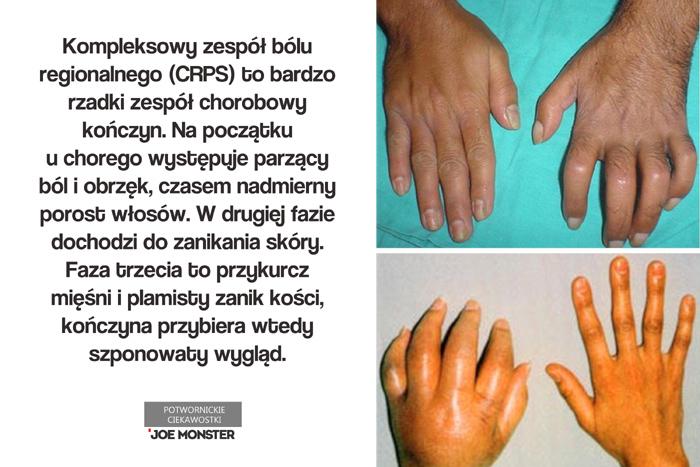 Kompleksowy zespół bólu regionalnego (CRPS) to bardzo rzadki zespół chorobowy kończyn. Na początku u chorego występuje parzący ból i obrzęk, czasem nadmierny porost włosów. W drugiej fazie dochodzi do zanikania skóry. Faza trzecia to przykurcz mięśni i plamisty zanik kości, kończyna przybiera wtedy szponowaty wygląd.