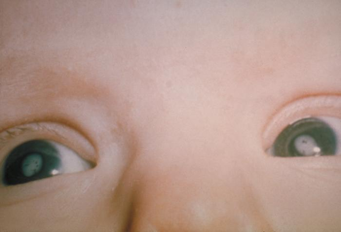 Cataracts_due_to_Congenital_Rubella_Syndrome_%28CRS%29_PHIL_4284_lores.jpg
