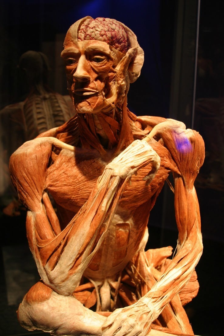 Plastination.jpg?q=50&fit=crop&w=738