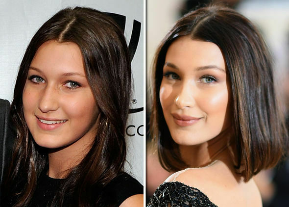 Bella-Hadid-before-and-after-1050930.jpg?r=1541675186217