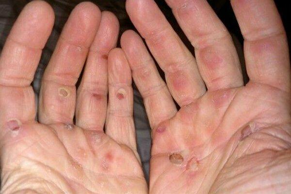 9 deformacji i zmian na ciele, które są spowodowane wykonywaniem określonego zawodu