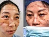Personel medyczny ze szpitala w Wuhan po noszeniu masek przez całą zmianę