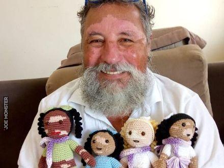 Ten pan z bielactwem szyje lalki dla dzieci z tą samą chorobą