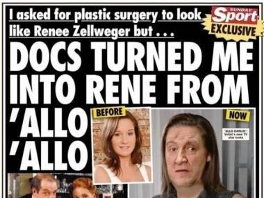 Chciała wyglądać jak Rene Zellweger a wygląda jak Rene z Allo Allo