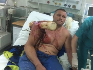 Białoruski pilot rozbił się i nadział na drzewo. U lekarza krzyczał: Jestem Grootem