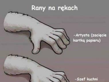Poranione ręce
